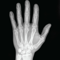 X-Ray of a Hand.jpg