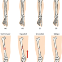 Types of Fractures.jpg